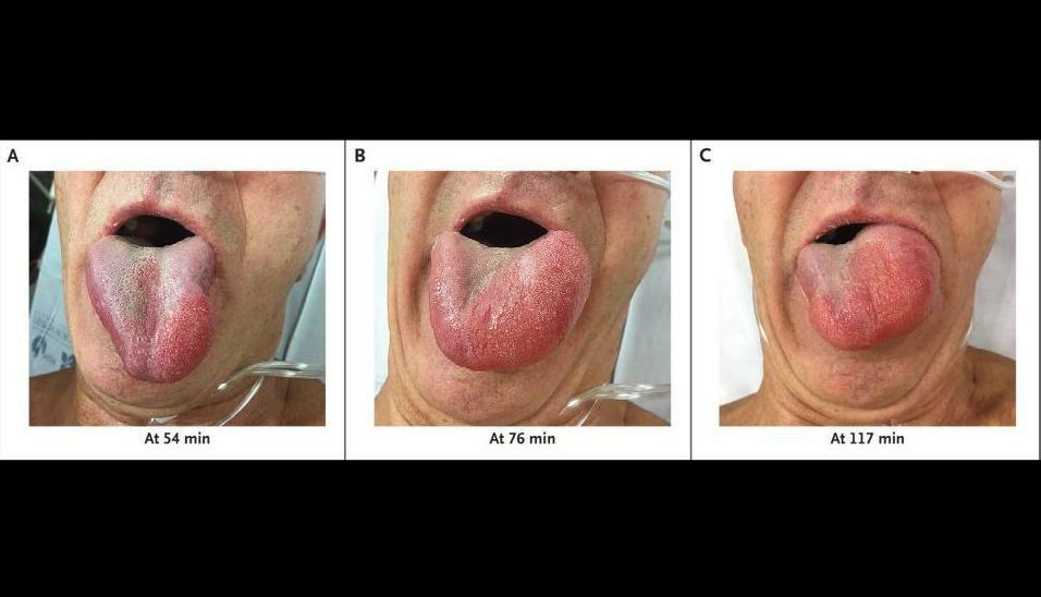 Изображение Отек Квинке после инфузии тканевого активатора пла…